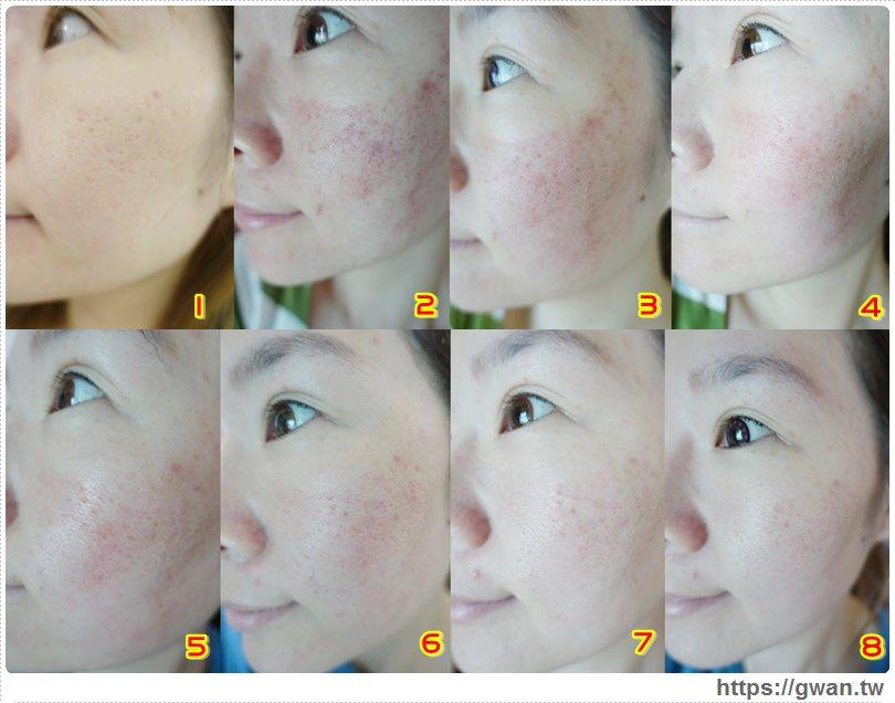 [醫美] 拯救凹疤大作戰 — 京硯飛針+EGF生長因子(持續更新)